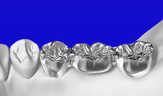 銀歯イメージ