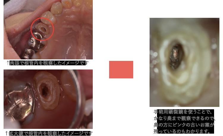 手術用顕微鏡を使用した治療経過